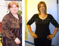 Shauna Reid - Before and After losing 175 pounds